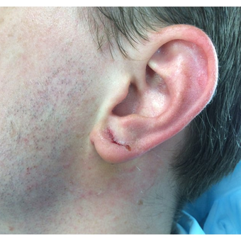 25-34 year old man treated with Ear Lobe Surgery after 3187439