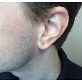 25-34 year old man treated with Ear Lobe Surgery before 3187439