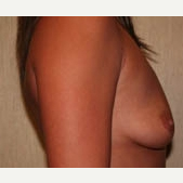 25-34 year old feman treated with Breast Implants before 3299929