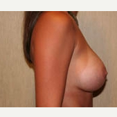 25-34 year old feman treated with Breast Implants after 3299929