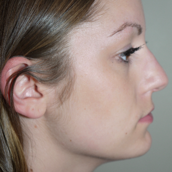 18-24 year old woman treated with Kybella after 2744540