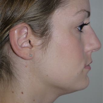 18-24 year old woman treated with Kybella before 2744540