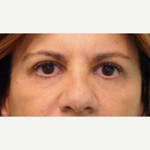 45-54 year old woman treated with Brow Lift and Upper Eyelid Lift after 3749128