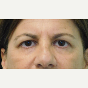 45-54 year old woman treated with Brow Lift and Upper Eyelid Lift before 3749128