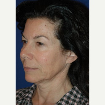 45-54 year old woman treated with Facelift before 2441144