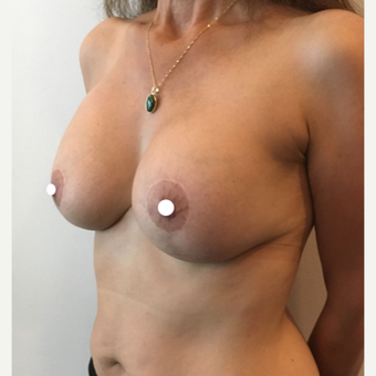 45-54 year old woman treated with Breast Lift with Implants after 3761382