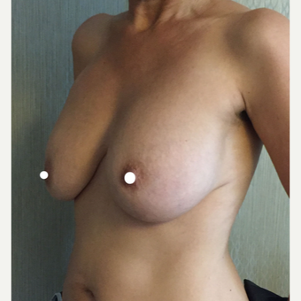 45-54 year old woman treated with Breast Lift with Implants before 3761382