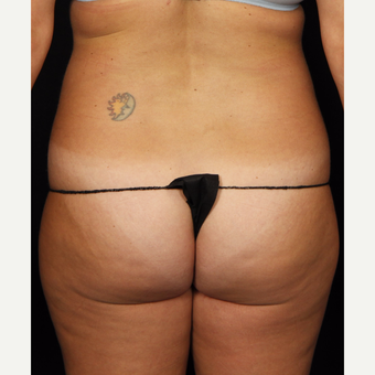 35-44 year old woman treated with Smart Lipo before 3542225