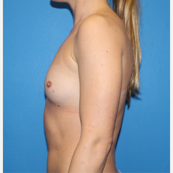 25-34 year old woman treated with Breast Augmentation before 3281367