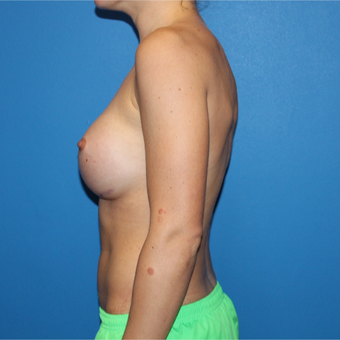 25-34 year old woman treated with Breast Augmentation after 3281367