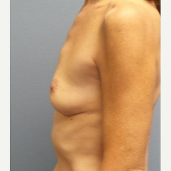 55-64 year old woman treated with Breast Augmentation before 3282331