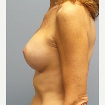 55-64 year old woman treated with Breast Augmentation after 3282331