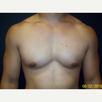 30 year old man treated with Liposuction and Open Excision Gynecomastia after 3201623