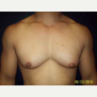 30 year old man treated with Liposuction and Open Excision Gynecomastia before 3201623