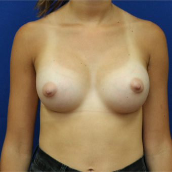 25-34 year old woman treated with Breast Implants after 3685659