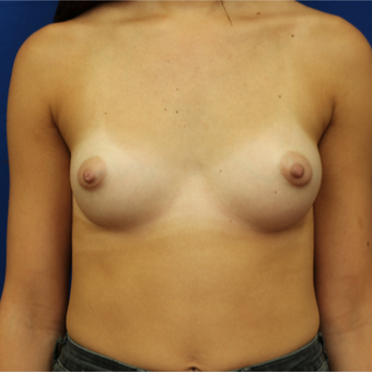 25-34 year old woman treated with Breast Implants before 3685659