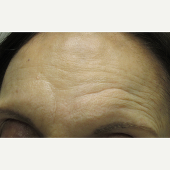 74 year old woman treated with Dysport and Belotero for scar on forehead before 3121184