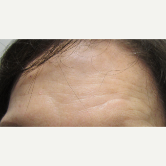 74 year old woman treated with Dysport and Belotero for scar on forehead after 3121184