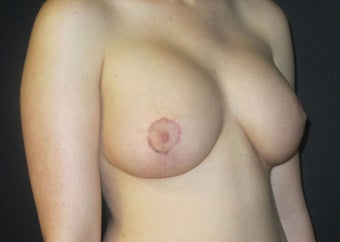 18-24 year old woman treated with Breast Implant Revision after 2988109