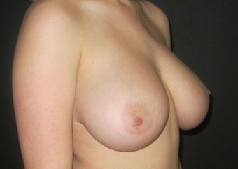 18-24 year old woman treated with Breast Implant Revision before 2988109