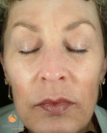 Female Treated with BOTOX® Cosmetic and Restylane® after 1047006