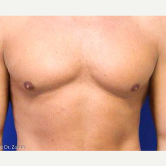35-44 year old woman treated with Liposuction before 3066184