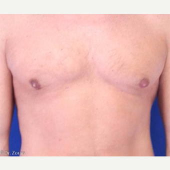 35-44 year old woman treated with Liposuction after 3066184