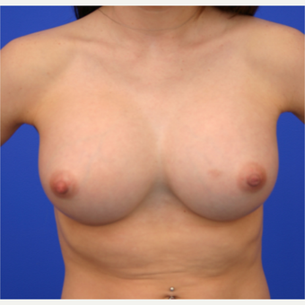 26- year old woman treated with Breast Implant Revision before 3168411