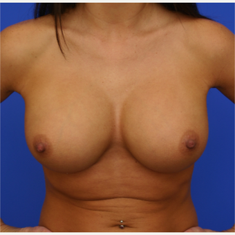 26- year old woman treated with Breast Implant Revision after 3168411