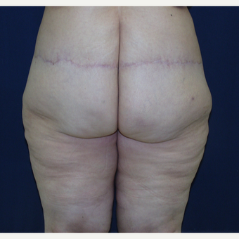 45-54 year old woman treated with Body Lift after 3147082