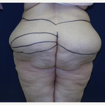 45-54 year old woman treated with Body Lift before 3147082