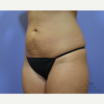25-34 year old woman treated with Tummy Tuck before 3415703