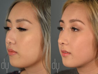 Asian Rhinoplasty with rib cartilage and DCF before 2465773