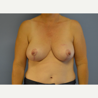 45-54 year old woman treated with Breast Reduction after 3531032