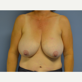 45-54 year old woman treated with Breast Reduction before 3531032