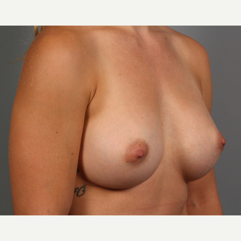 18-24 year old woman treated with Endo-Axillary Breast Augmentation after 3494289