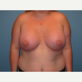 25-34 year old woman treated with MTF Breast Augmentation after 2486799