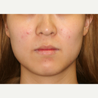 25-34 year old woman treated with Botox to the masseters to thin the face before 2706370