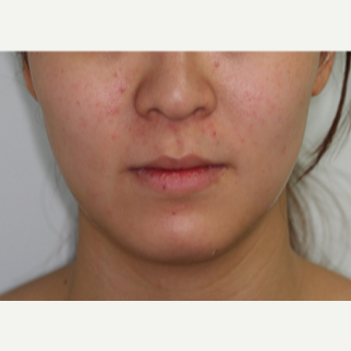 25-34 year old woman treated with Botox to the masseters to thin the face after 2706370