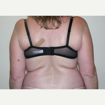46 year old woman treated with Liposuction before 3693754