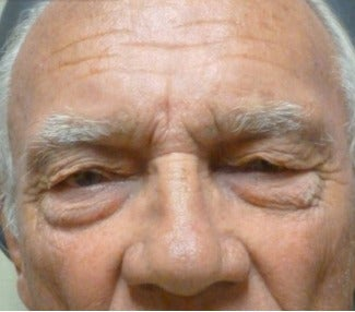 65-74 year old man treated with Eye Bags Treatment before 3286107