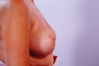 Breast Reduction after 3446226
