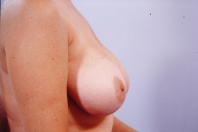 Breast Reduction before 3446226