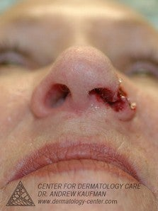 Mohs Surgery of Basal Cell Carcinoma and Recontruction 315015