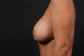 Breast Implant Revision and Breast Lift 476599