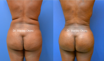 35 year old fat transfer to buttocks before 907516