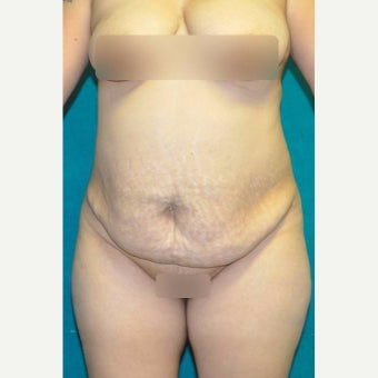 25-34 year old woman treated with Tummy Tuck before 1773403