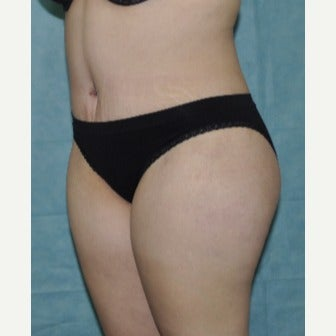 25-34 year old woman treated with Tummy Tuck 1773403