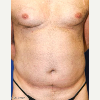 45-54 year old man treated with Liposuction before 3066111