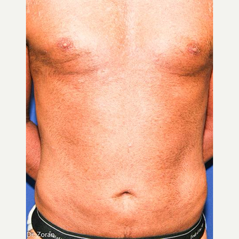 45-54 year old man treated with Liposuction after 3066111